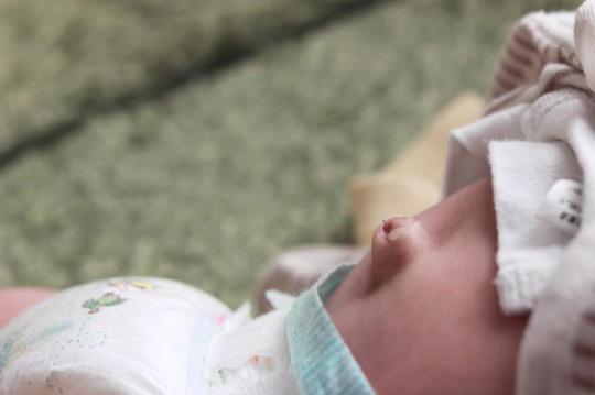 赤ちゃんのデベソを治す方法